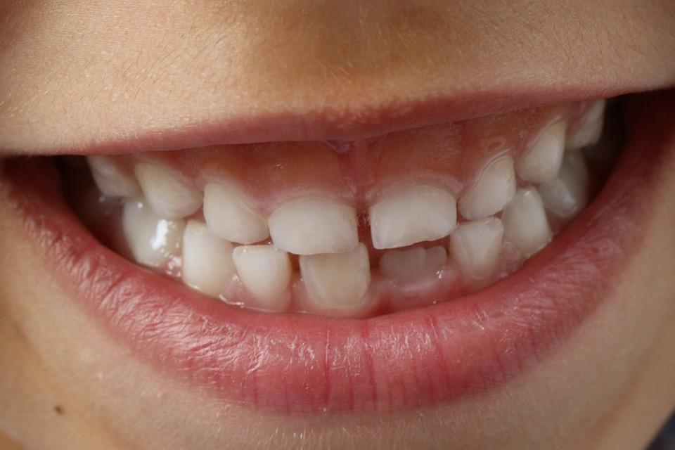 Zähneknirschen Kinder